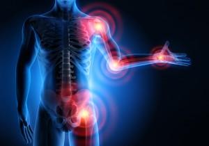 Rheuma Schmerzpunkte mit TCM lindern