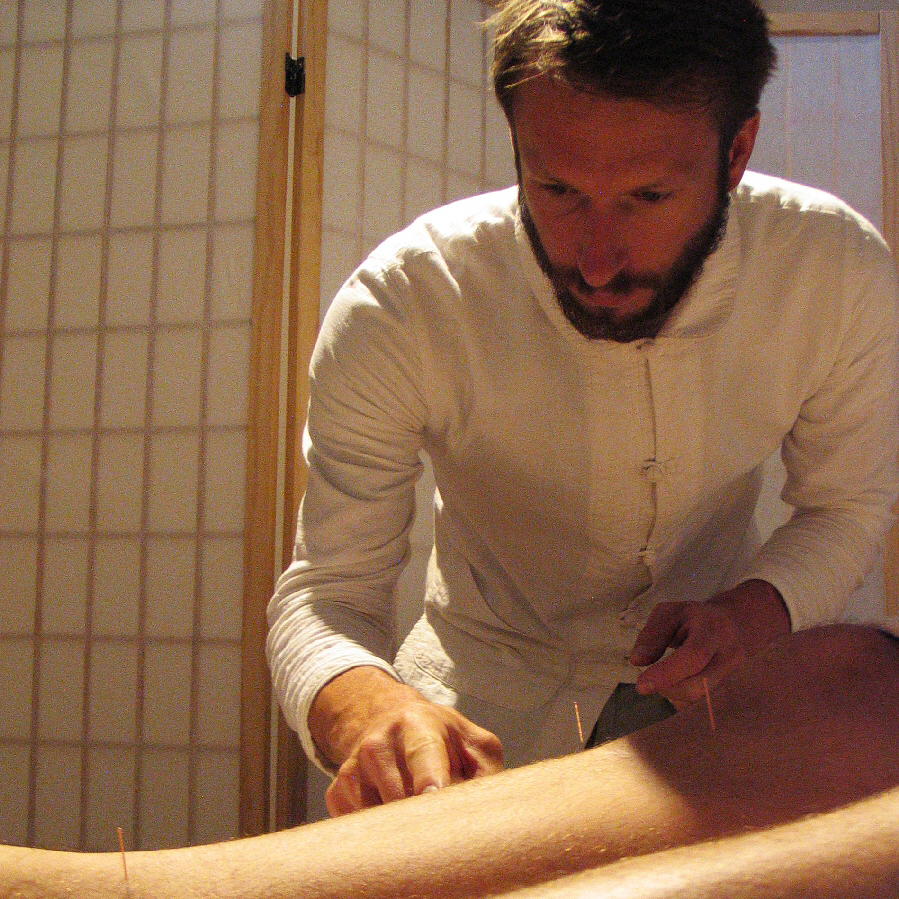 Die Akupunktur in der Traditionellen Chinesischen Medizin